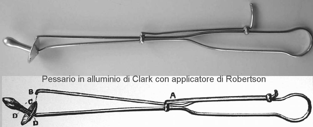 Pessario di Clark con applicatore